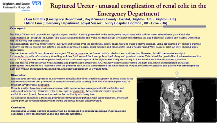 Ruptured ureter EuSEM 2015 Poster
