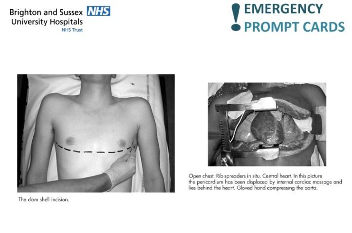 Thoracotomy in trauma 2